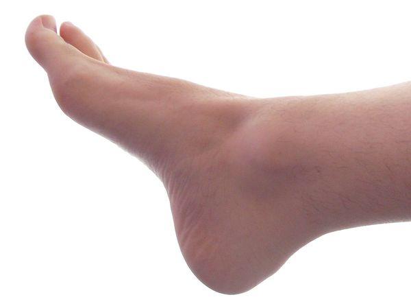 kebas-kaki