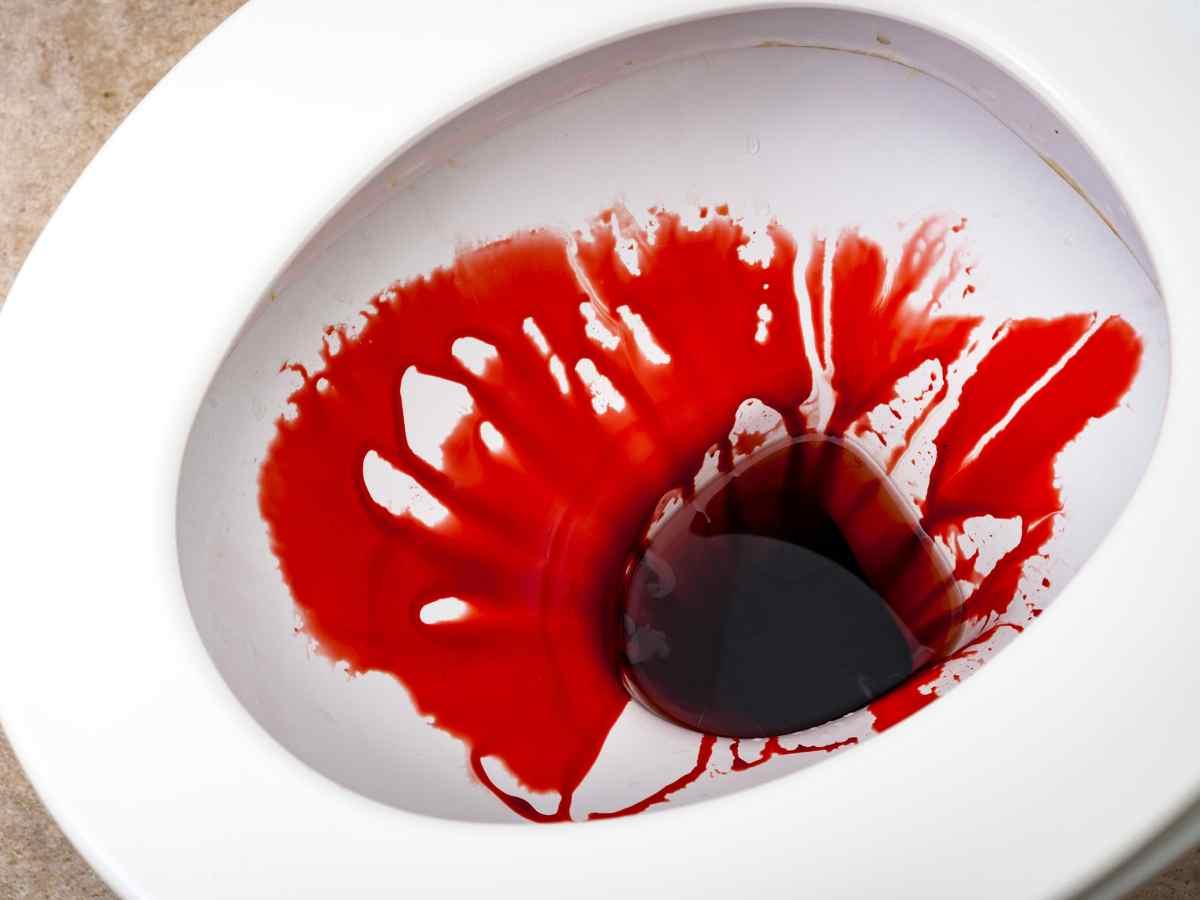 kencing-berdarah