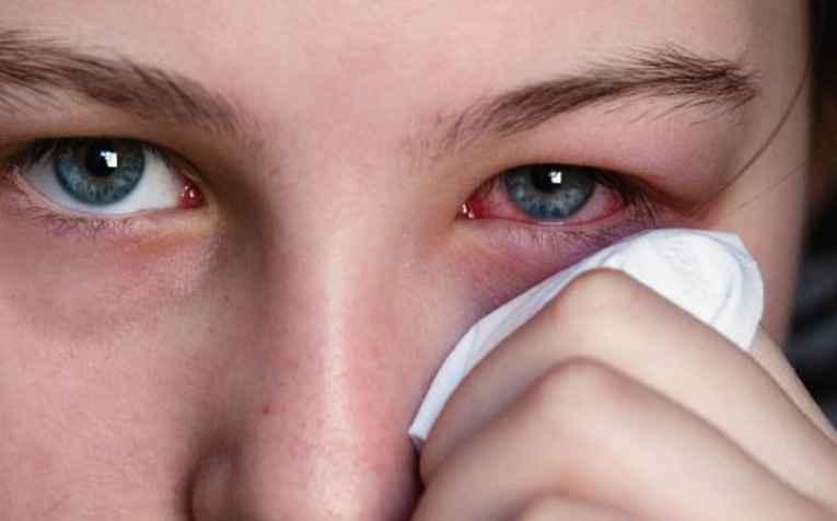 istock_photo_of_woman_holding_tissue_to_reddened_eye