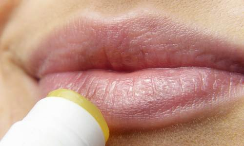 lips-3141753_640%20(1)