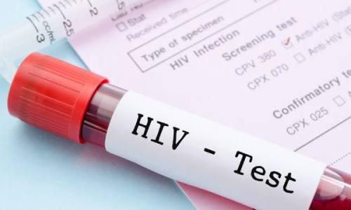 penyakit-hiv