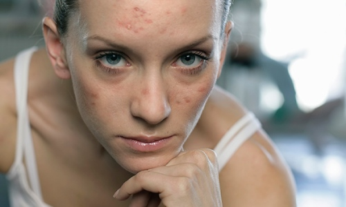 650x350_answers_about_adult_acne%20(1)